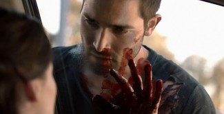 Teen-Wolf-Derek-Bloody hot sexy tyler hoechlin