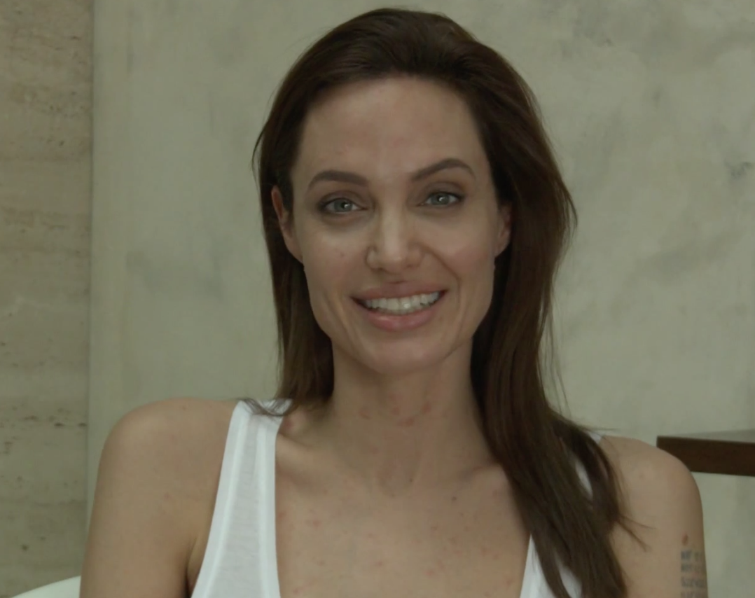 Angelina Jolie has chicken pox